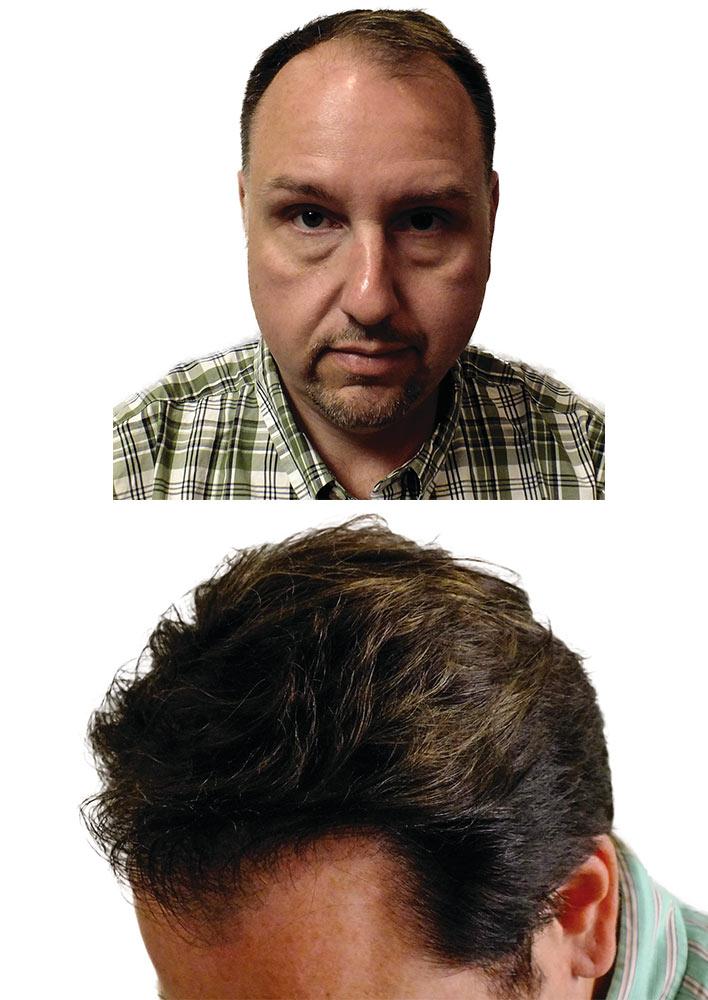Pre & Post Tre